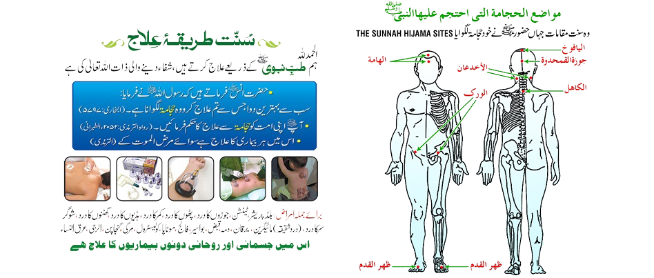 Hijama Center Karachi Address